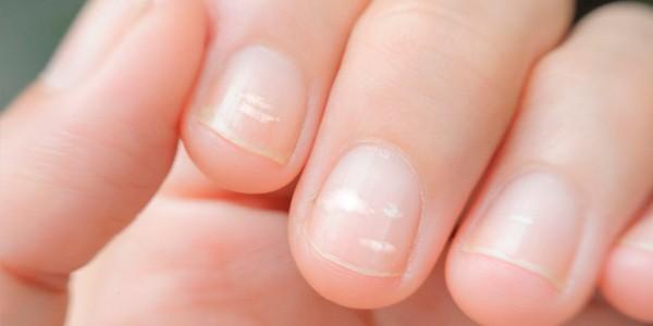 productos endurecedor uñas química alemana